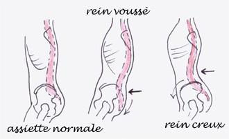La dorsalgie les muscles les articulations